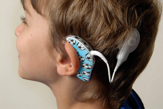 cochlear implant cost