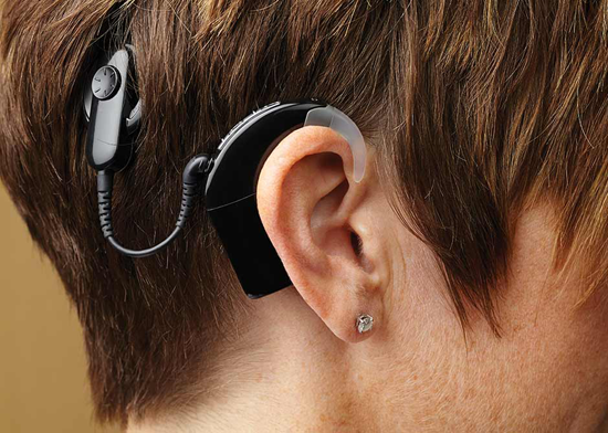 cochlear implant Singapore surgery